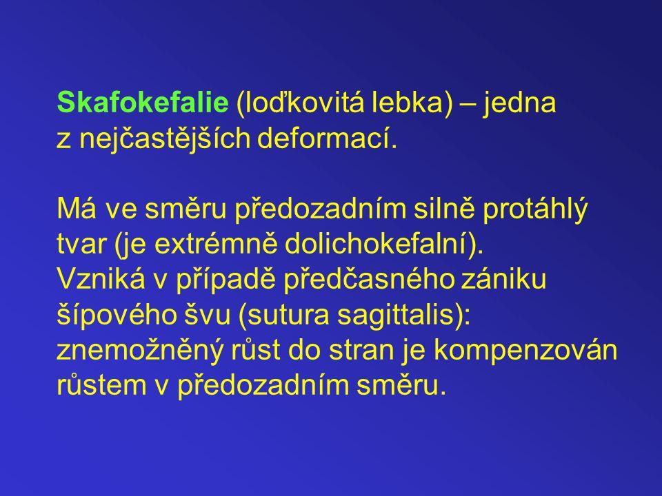 Skafokefalie (loďkovitá lebka) – jedna z nejčastějších deformací.
