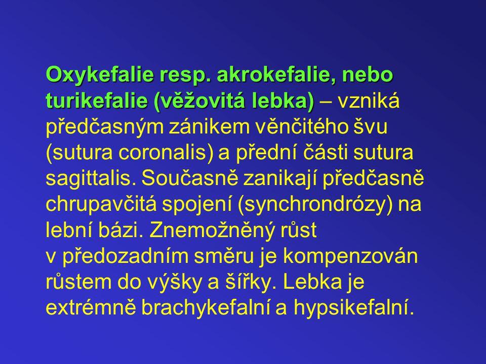 Oxykefalie resp.akrokefalie, nebo turikefalie (věžovitá lebka) Oxykefalie resp.