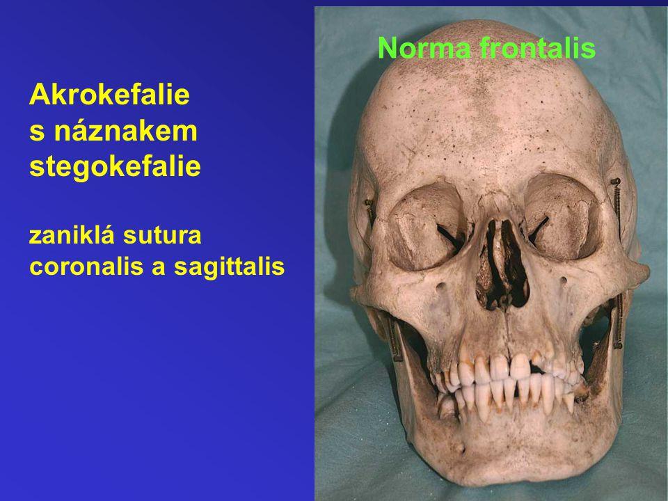 Norma frontalis Akrokefalie s náznakem stegokefalie zaniklá sutura coronalis a sagittalis