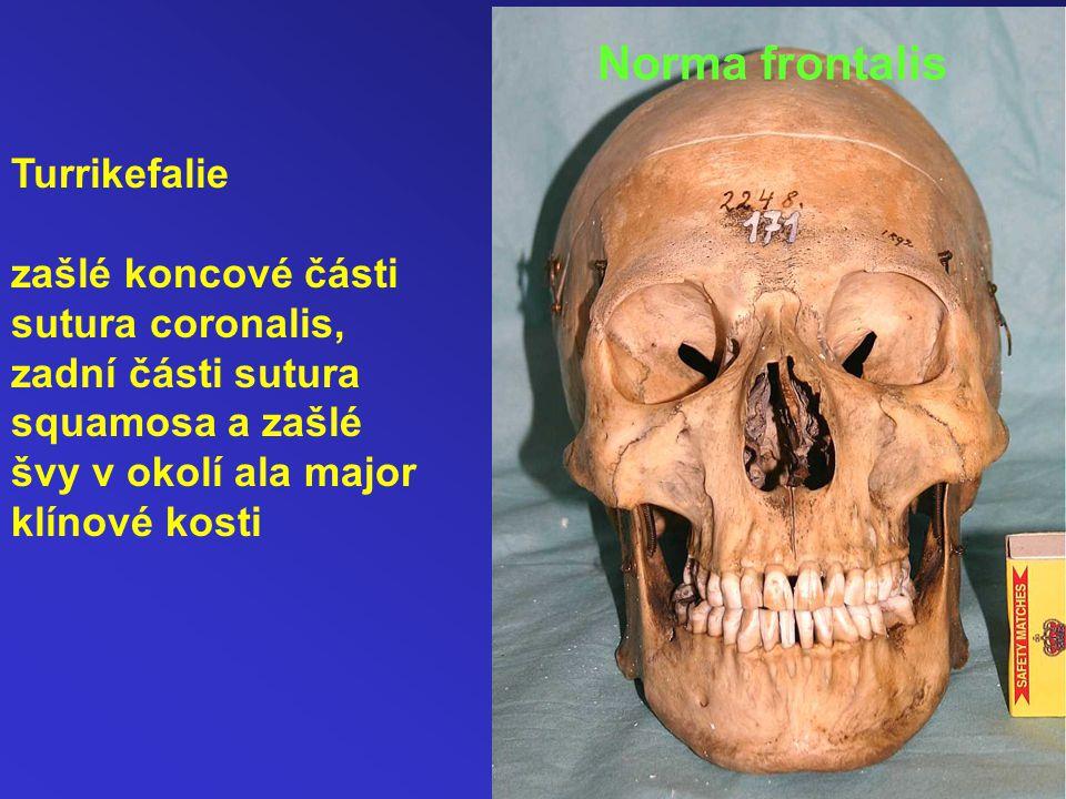 Turrikefalie zašlé koncové části sutura coronalis, zadní části sutura squamosa a zašlé švy v okolí ala major klínové kosti Norma frontalis