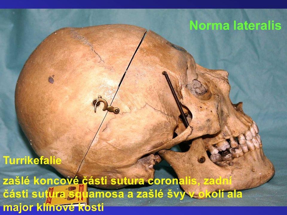 Turrikefalie zašlé koncové části sutura coronalis, zadní části sutura squamosa a zašlé švy v okolí ala major klínové kosti Norma lateralis