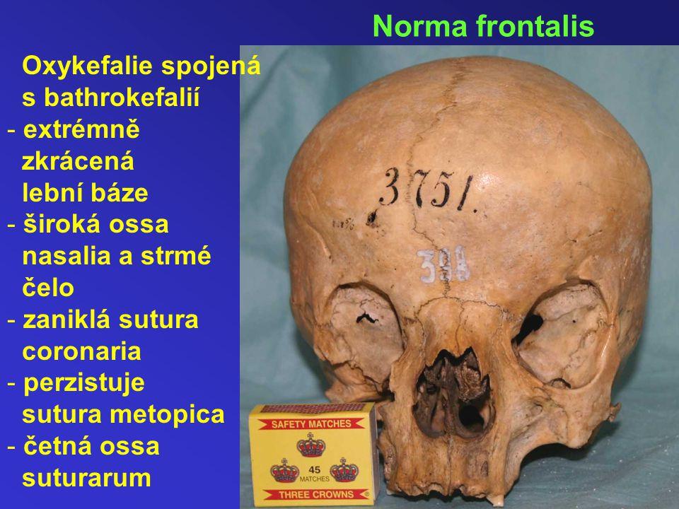 Oxykefalie spojená s bathrokefalií - extrémně zkrácená lební báze - široká ossa nasalia a strmé čelo - zaniklá sutura coronaria - perzistuje sutura metopica - četná ossa suturarum Norma frontalis