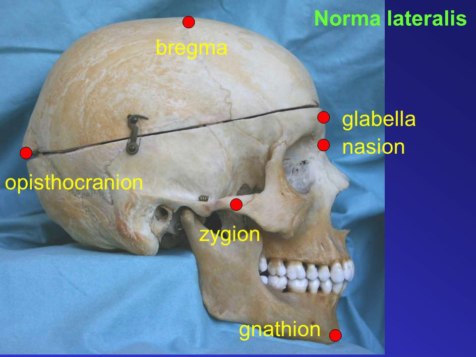 Norma lateralis zygion bregma glabella opisthocranion gnathion nasion