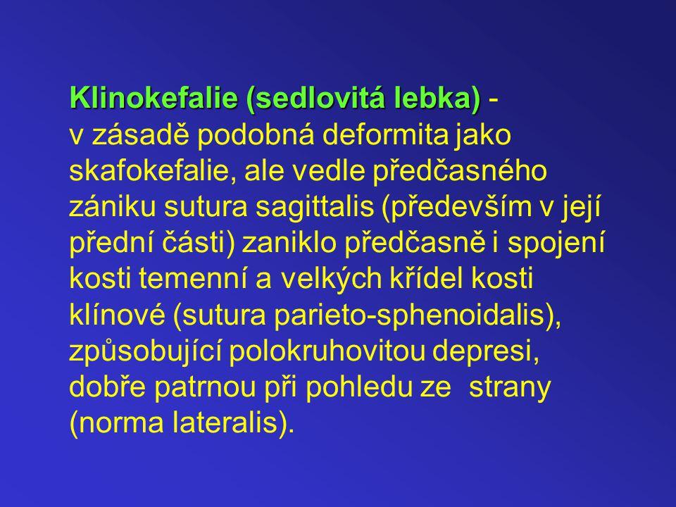 Klinokefalie (sedlovitá lebka) Klinokefalie (sedlovitá lebka) - v zásadě podobná deformita jako skafokefalie, ale vedle předčasného zániku sutura sagittalis (především v její přední části) zaniklo předčasně i spojení kosti temenní a velkých křídel kosti klínové (sutura parieto-sphenoidalis), způsobující polokruhovitou depresi, dobře patrnou při pohledu ze strany (norma lateralis).