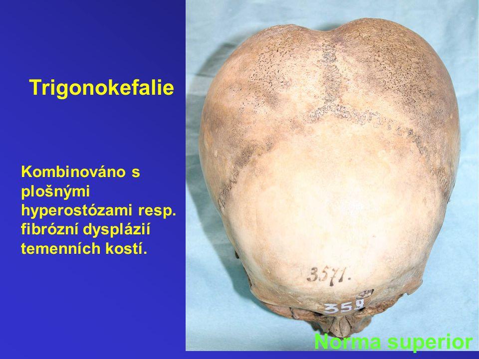 Kombinováno s plošnými hyperostózami resp.fibrózní dysplázií temenních kostí.