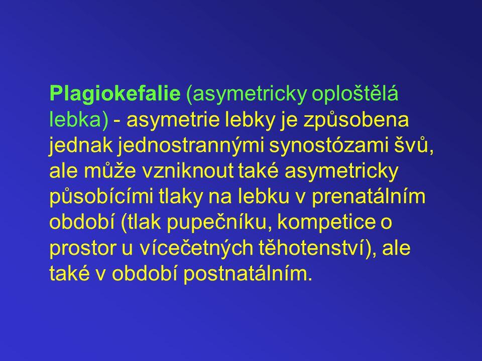 Plagiokefalie (asymetricky oploštělá lebka) - asymetrie lebky je způsobena jednak jednostrannými synostózami švů, ale může vzniknout také asymetricky působícími tlaky na lebku v prenatálním období (tlak pupečníku, kompetice o prostor u vícečetných těhotenství), ale také v období postnatálním.