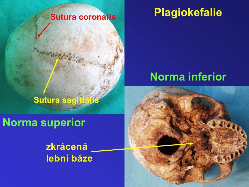 Plagiokefalie Norma superior Norma inferior Sutura coronalis Sutura sagittalis zkrácená lební báze
