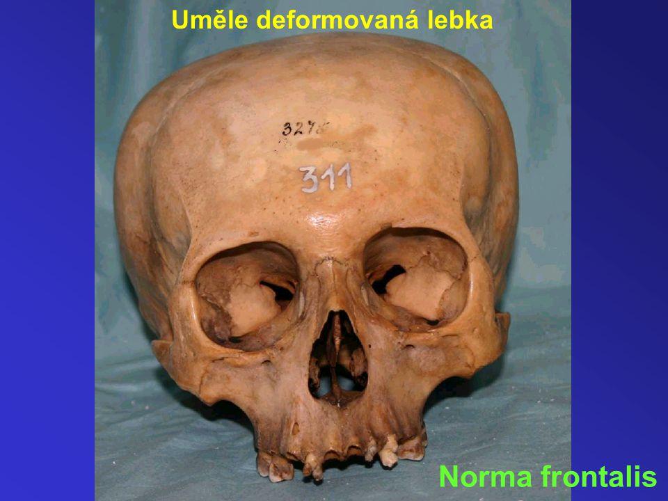 Uměle deformovaná lebka Norma frontalis