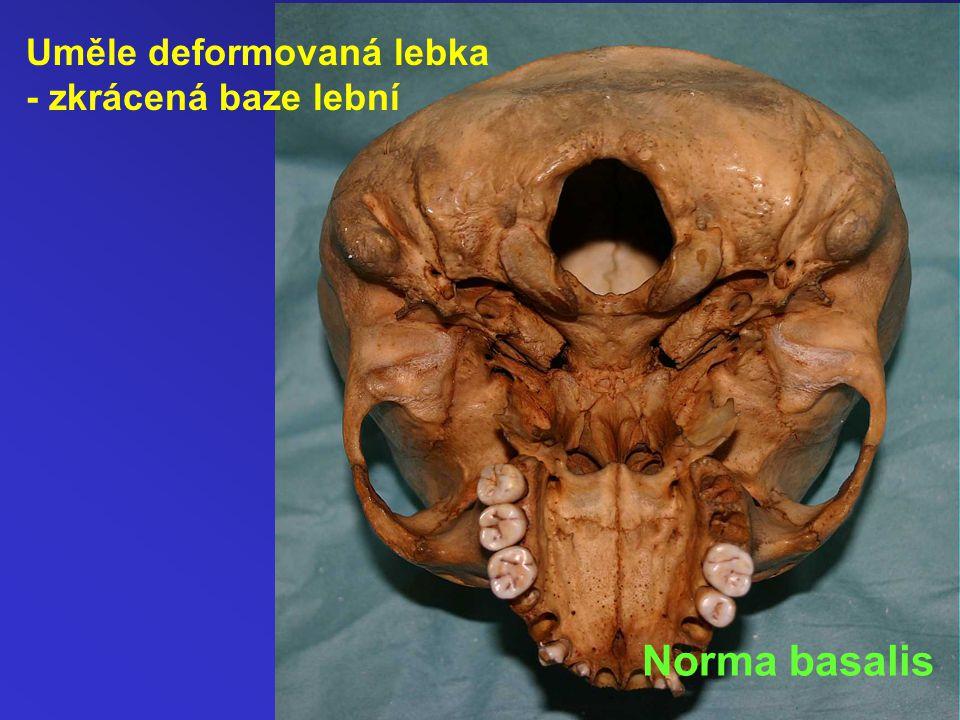 Uměle deformovaná lebka - zkrácená baze lební Norma basalis