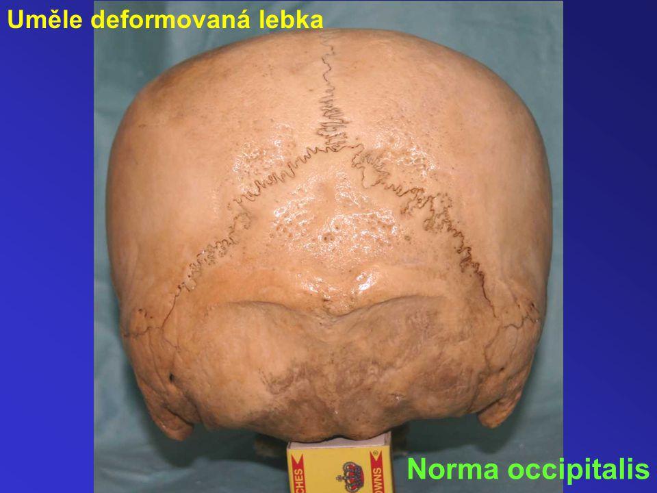 Uměle deformovaná lebka Norma occipitalis