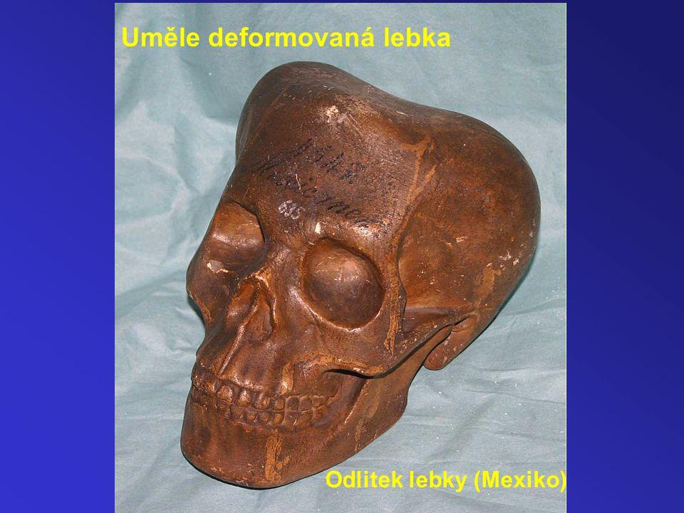 Uměle deformovaná lebka Odlitek lebky (Mexiko)
