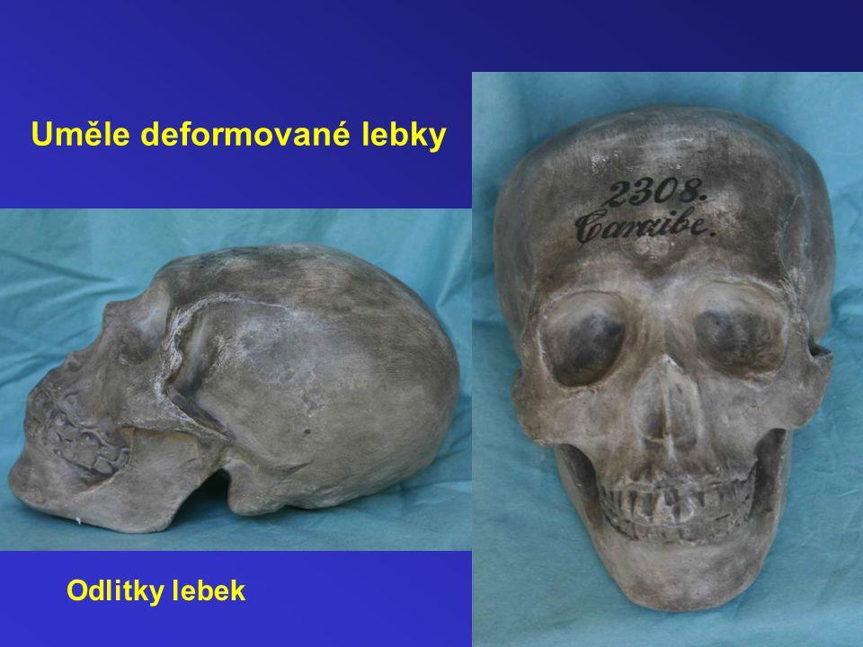 Uměle deformované lebky Odlitky lebek