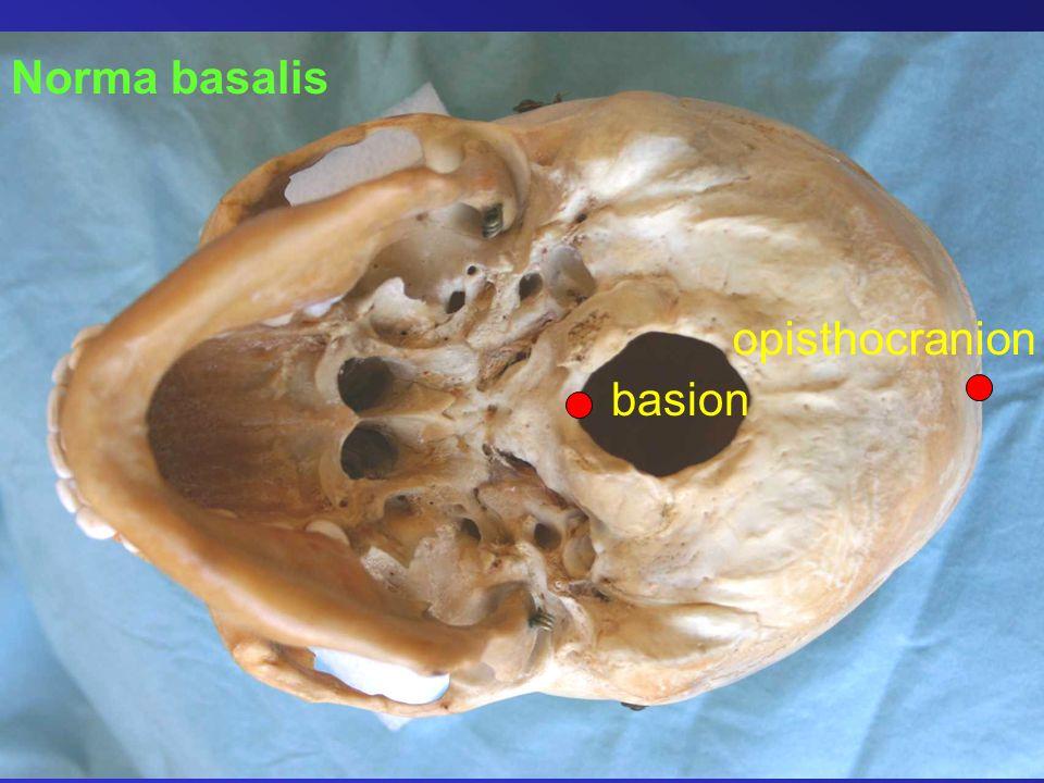 Norma basalis basion opisthocranion