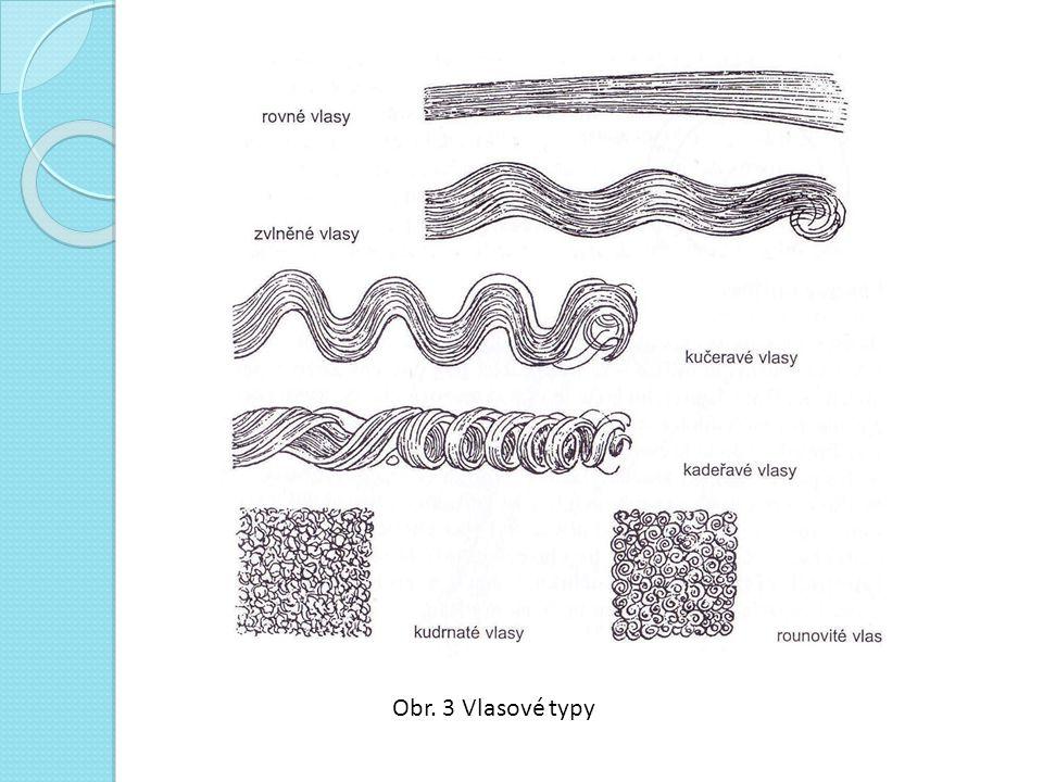 Obr. 3 Vlasové typy