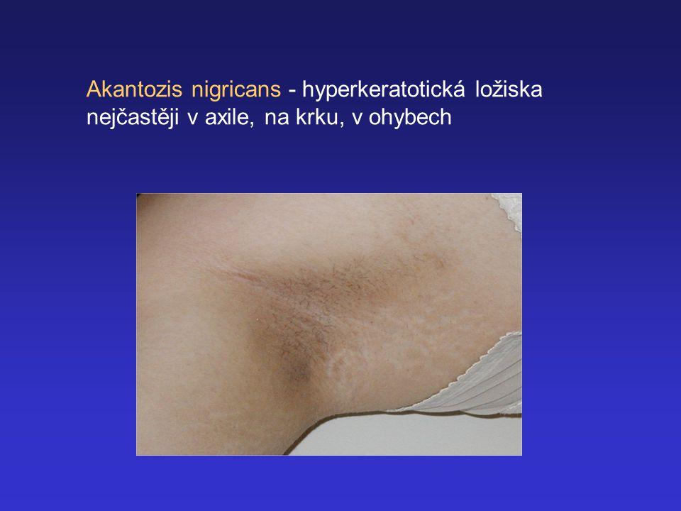 Akantozis nigricans - hyperkeratotická ložiska nejčastěji v axile, na krku, v ohybech