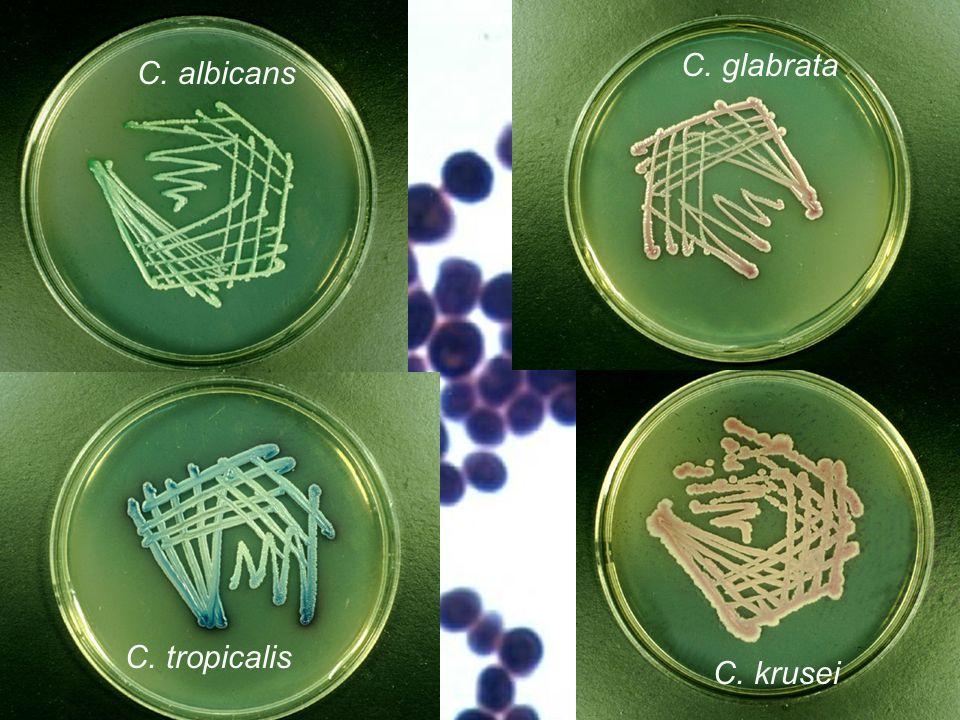 Chromogenní půda při diagnostice kandid Používají se různé chromogenní půdy.