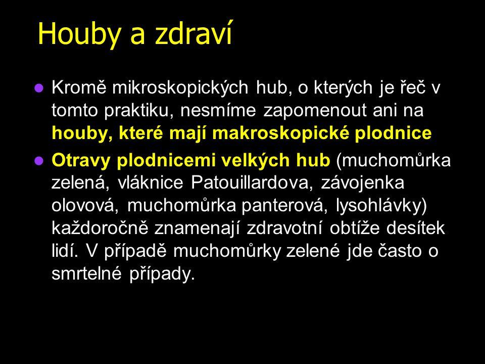 Obecná charakteristika hub Houby jsou eukaryotní organismy, na rozdíl od prokaryotních bakterií Jejich buněčná stěna je tvořena polysacharidy, má jinou stavbu a složení než buněčná stěna bakterií.
