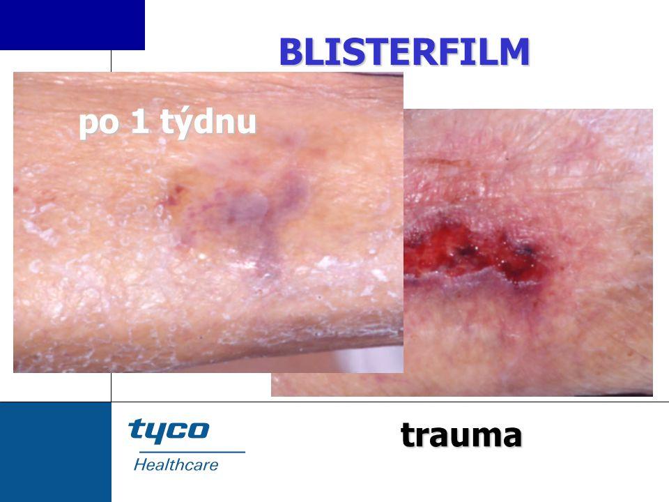 BLISTERFILM trauma po 1 týdnu