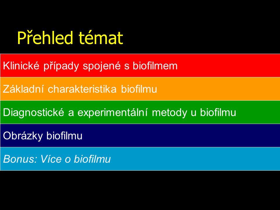 Přehled témat Klinické případy spojené s biofilmem Základní charakteristika biofilmu Diagnostické a experimentální metody u biofilmu Obrázky biofilmu