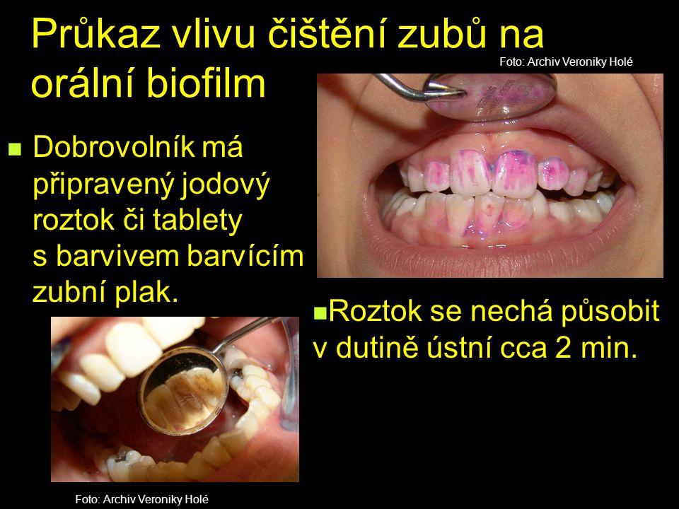 Průkaz vlivu čištění zubů na orální biofilm Dobrovolník má připravený jodový roztok či tablety s barvivem barvícím zubní plak. Roztok se nechá působit