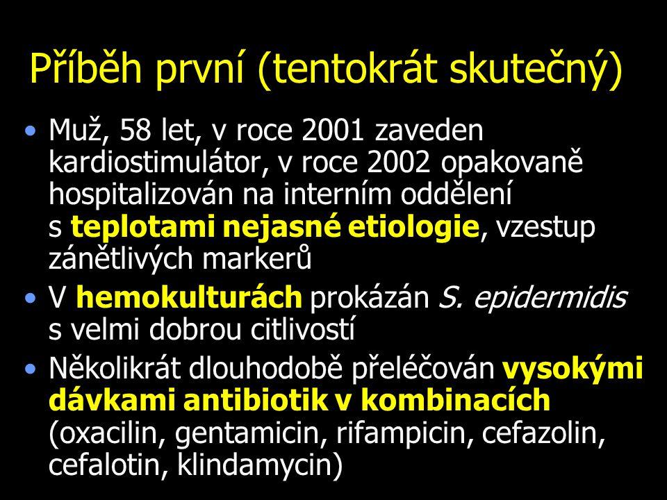 Různé obrázky biofilmu Foto: Archiv of Veroniky Holé Biofilm na katetru Bakterie Kanálek Katetr Polysacharidy