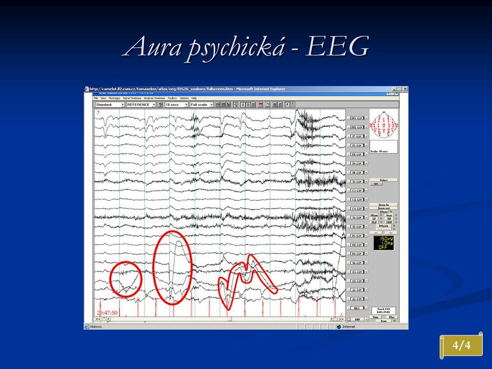 Aura psychická - EEG 4/4