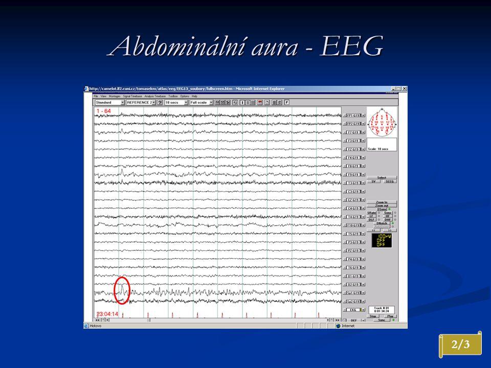 Abdominální aura - EEG 2/3