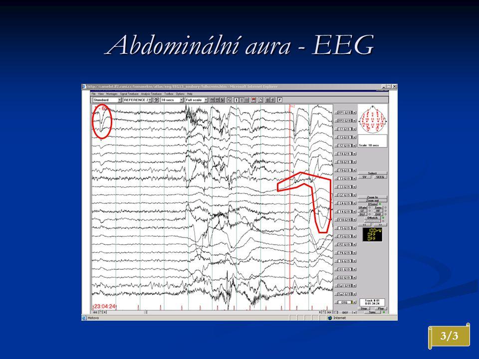 Abdominální aura - EEG 3/3