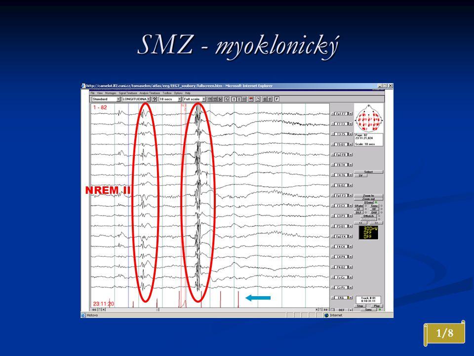 SMZ - myoklonický NREM II 1/8