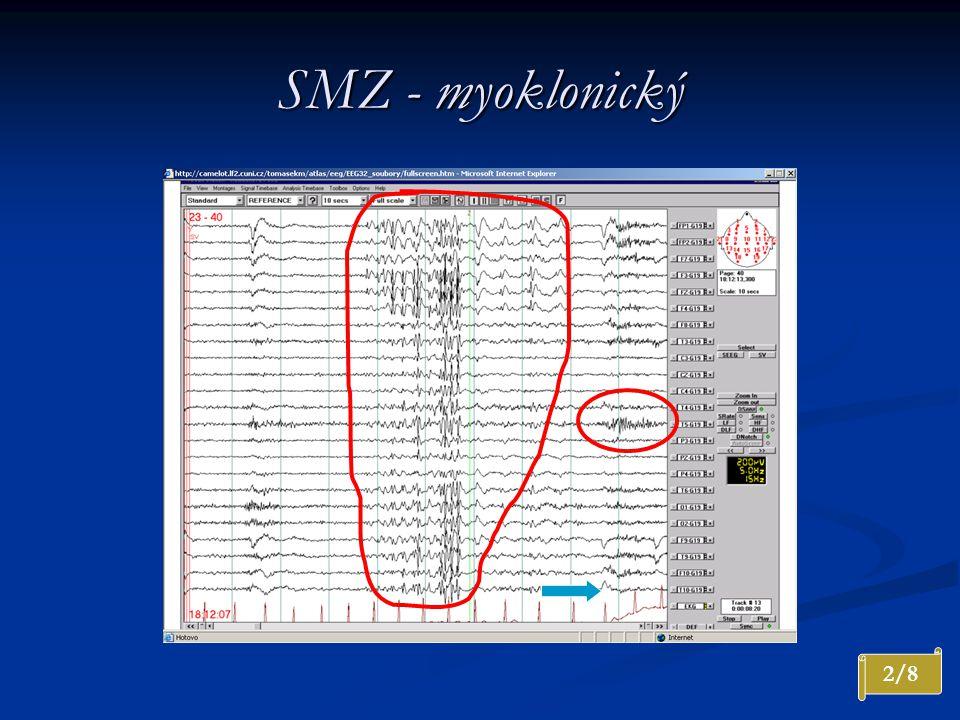 SMZ - myoklonický 2/8