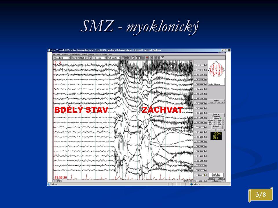 SMZ - myoklonický BDĚLÝ STAVZÁCHVAT 3/8