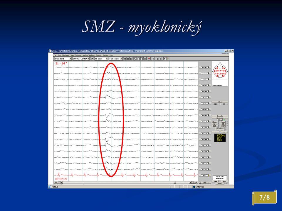 SMZ - myoklonický 7/8