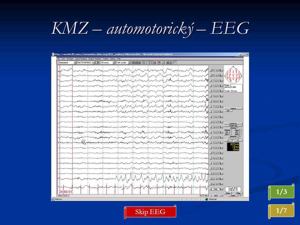 KMZ – automotorický – EEG 1/7 Skip EEG 1/3