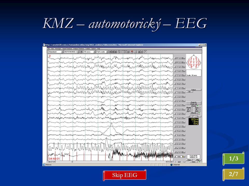 KMZ – automotorický – EEG 2/7 1/3 Skip EEG