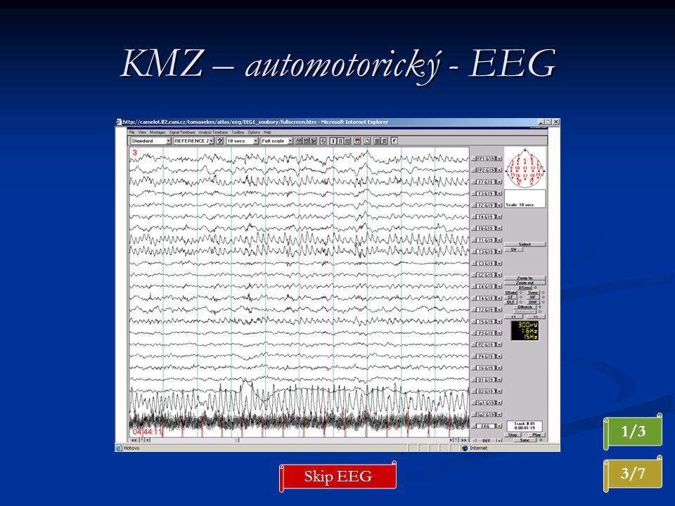 KMZ – automotorický - EEG 3/7 1/3 Skip EEG
