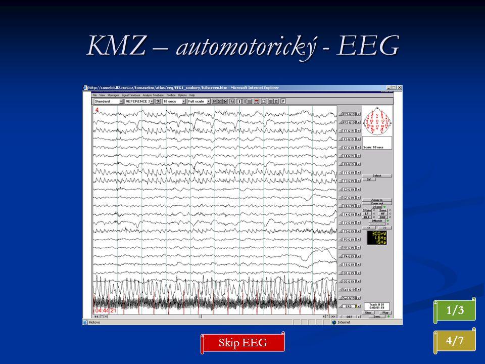 KMZ – automotorický - EEG 4/7 1/3 Skip EEG