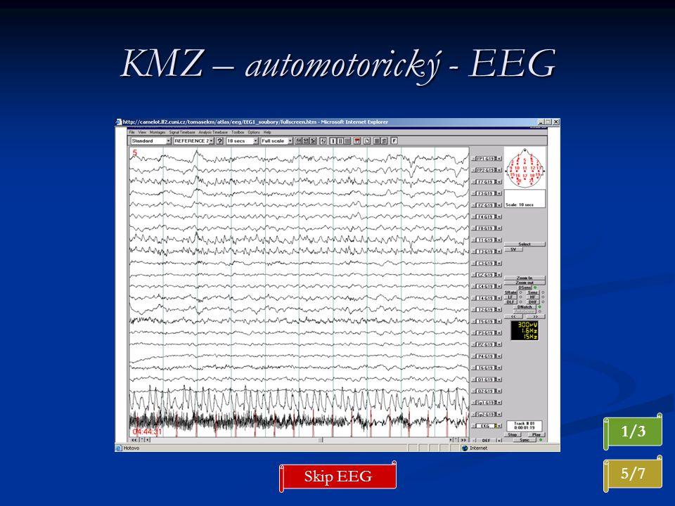 KMZ – automotorický - EEG 5/7 1/3 Skip EEG
