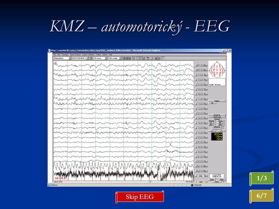 KMZ – automotorický - EEG 6/7 1/3 Skip EEG