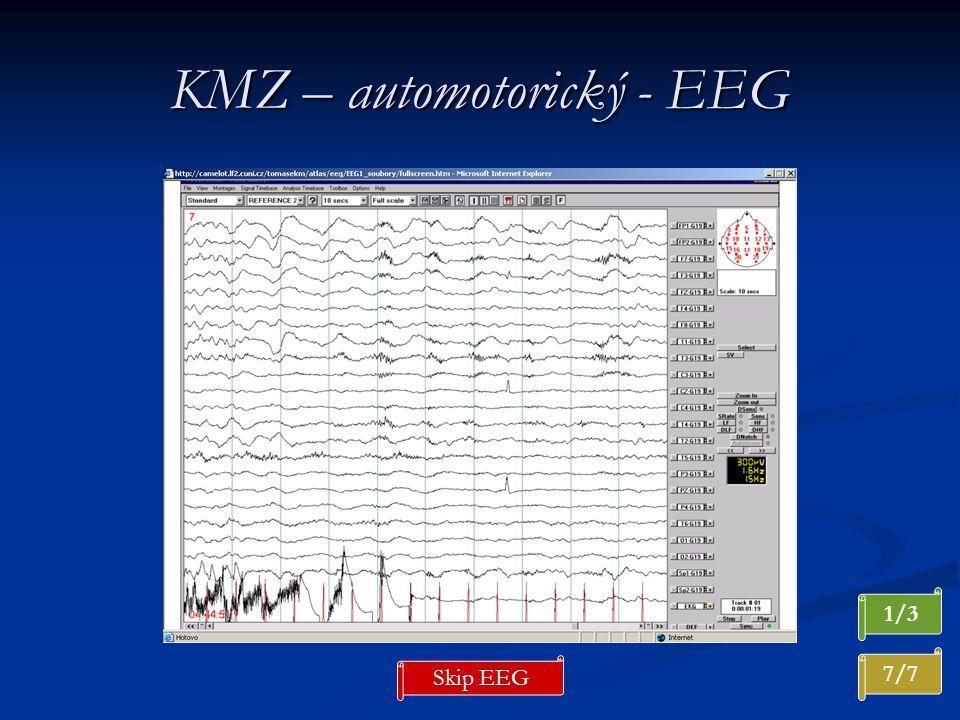 KMZ – automotorický - EEG 7/7 1/3 Skip EEG