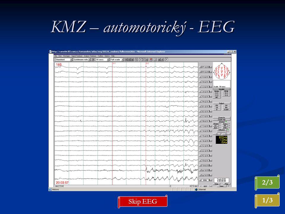 KMZ – automotorický - EEG 2/3 1/3 Skip EEG