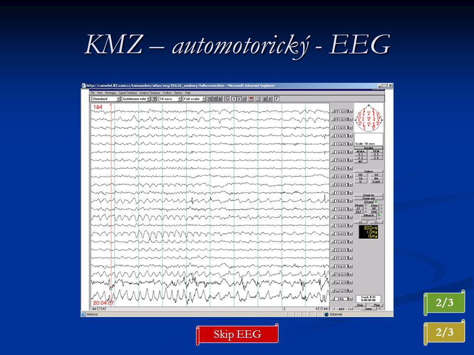 KMZ – automotorický - EEG 2/3 Skip EEG