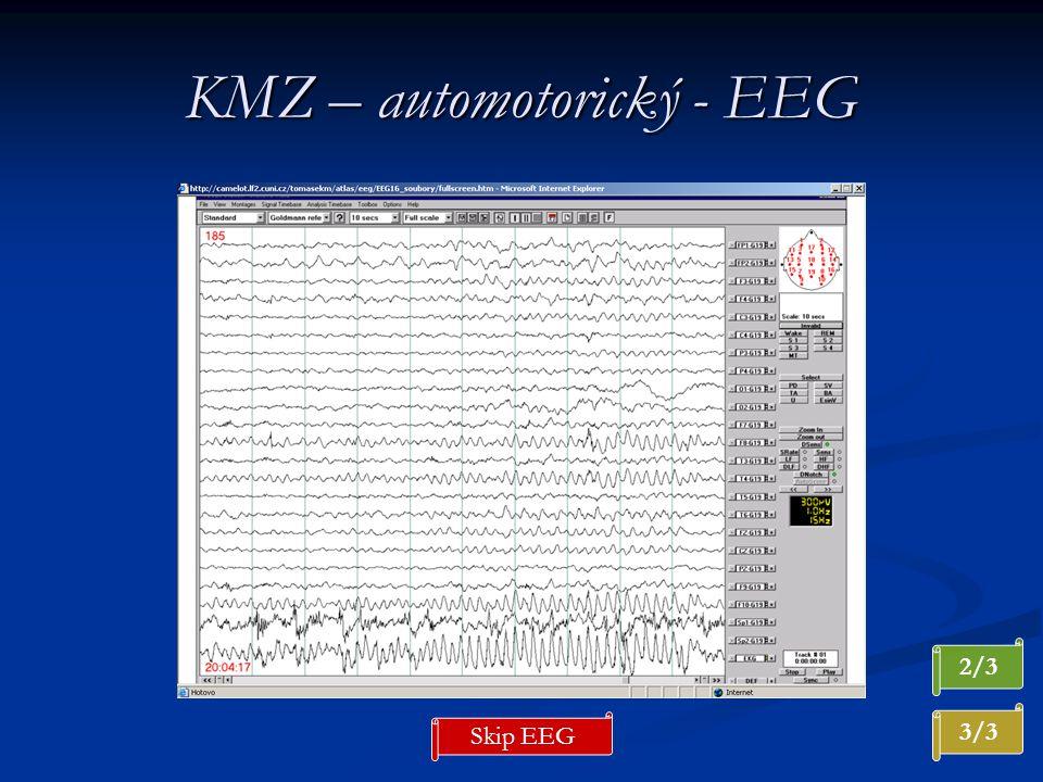 KMZ – automotorický - EEG 2/3 3/3 Skip EEG