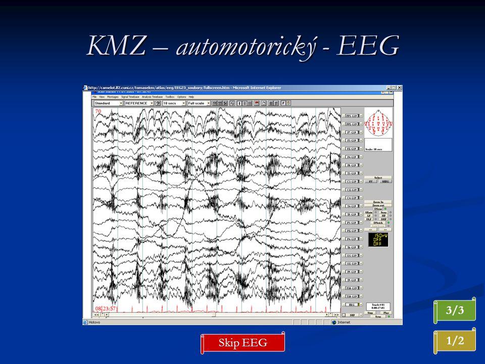 KMZ – automotorický - EEG 3/3 1/2 Skip EEG