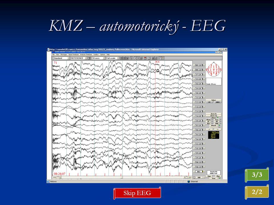 KMZ – automotorický - EEG 3/3 2/2 Skip EEG