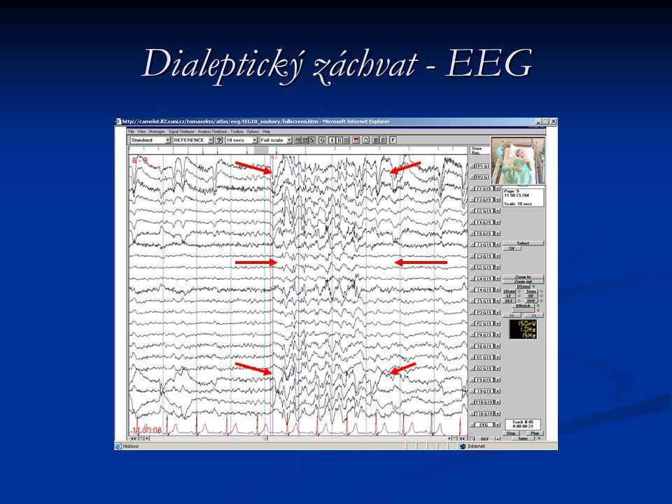 Dialeptický záchvat - EEG