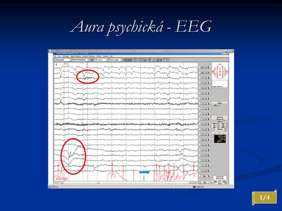 Aura psychická - EEG 1/4