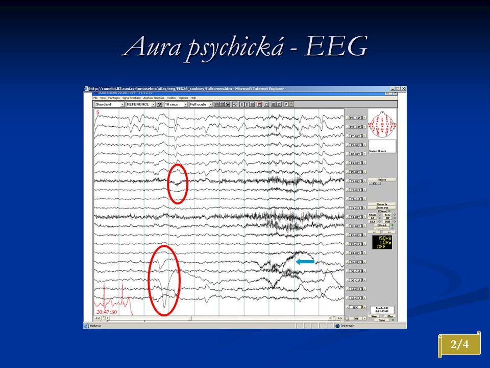 Aura psychická - EEG 2/4