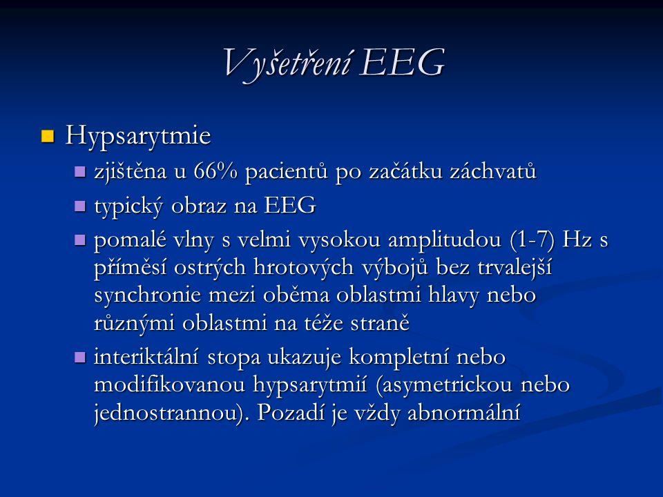 Vyšetření EEG Hypsarytmie Hypsarytmie zjištěna u 66% pacientů po začátku záchvatů zjištěna u 66% pacientů po začátku záchvatů typický obraz na EEG typ