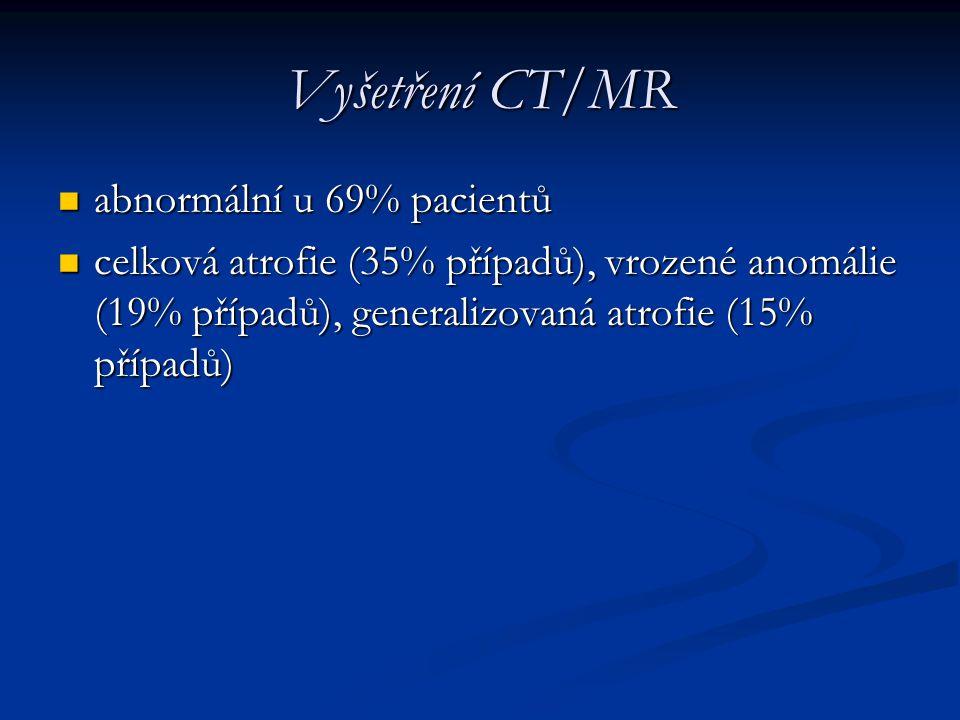 Vyšetření CT/MR abnormální u 69% pacientů abnormální u 69% pacientů celková atrofie (35% případů), vrozené anomálie (19% případů), generalizovaná atro