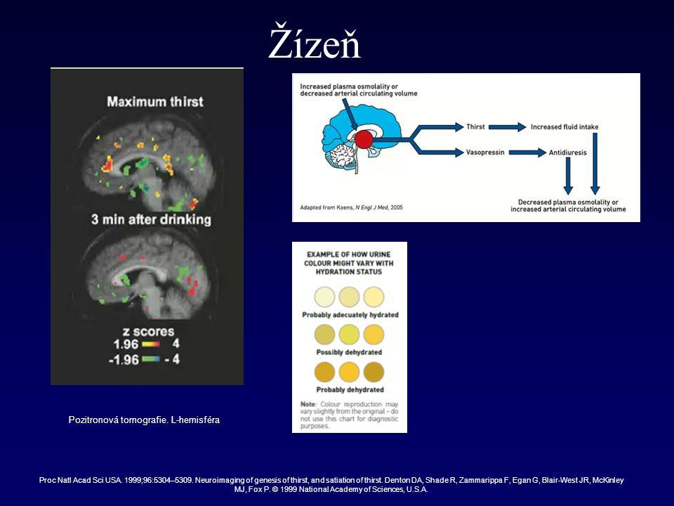 Žízeň Pozitronová tomografie.L-hemisféra Proc Natl Acad Sci USA.